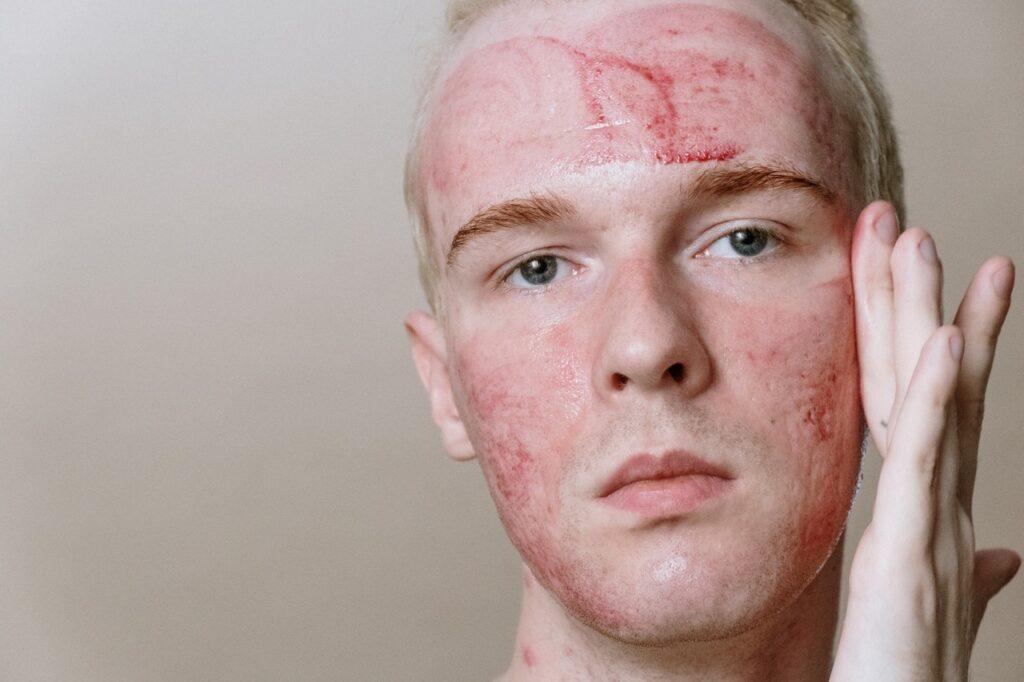 проблемная кожа лица