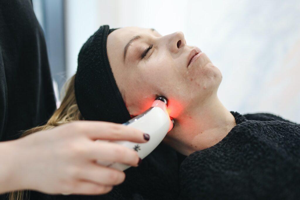 лазерная процедура на лице