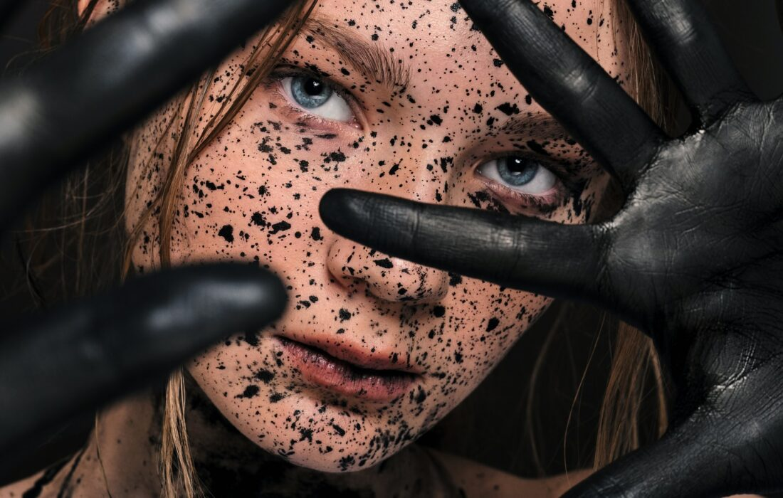 девушка с пятнами на лице