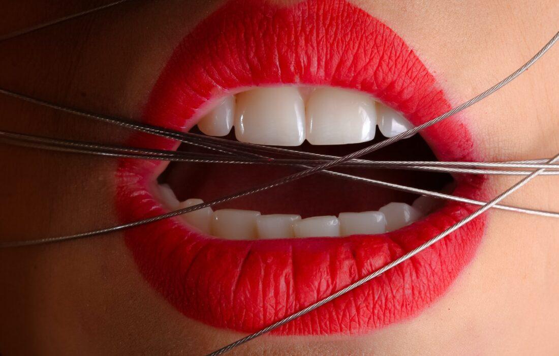 губы и проволока
