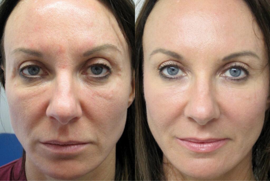 плазмотерапия для лица до и после