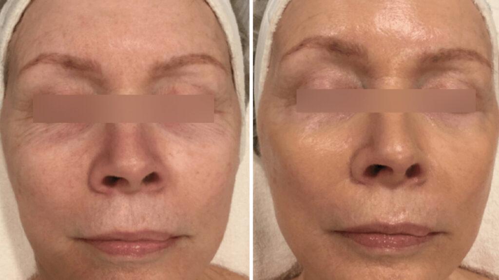 Криотерапия для лица до и после