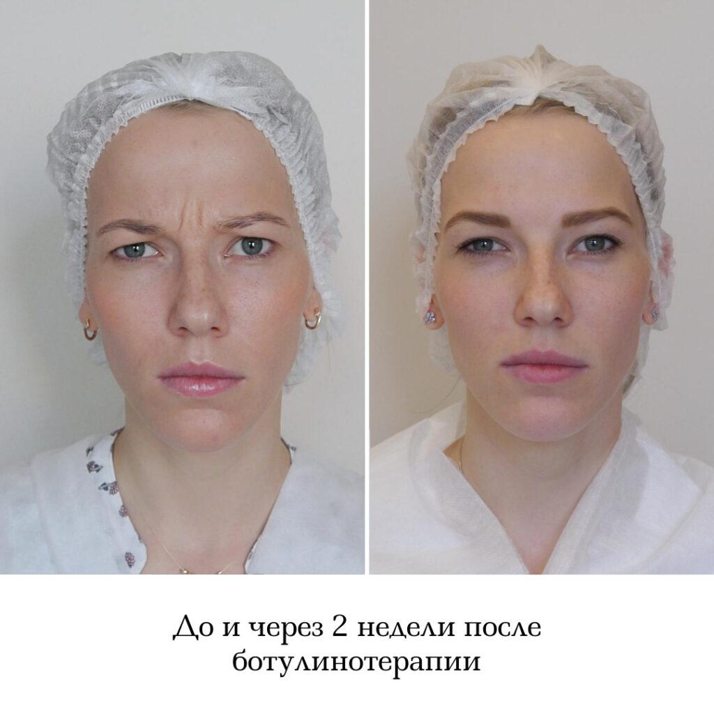 ботулинотерапия до и после