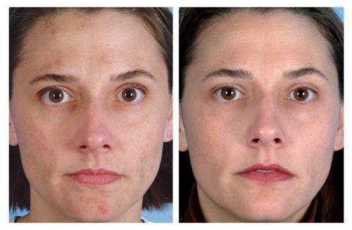 дарсонвализация лица до и после