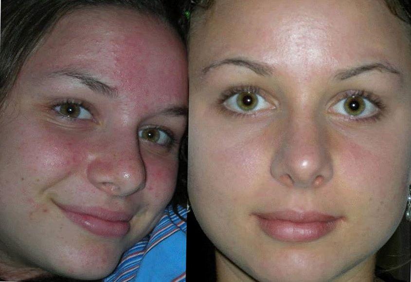 гальванотерапия лица до и после