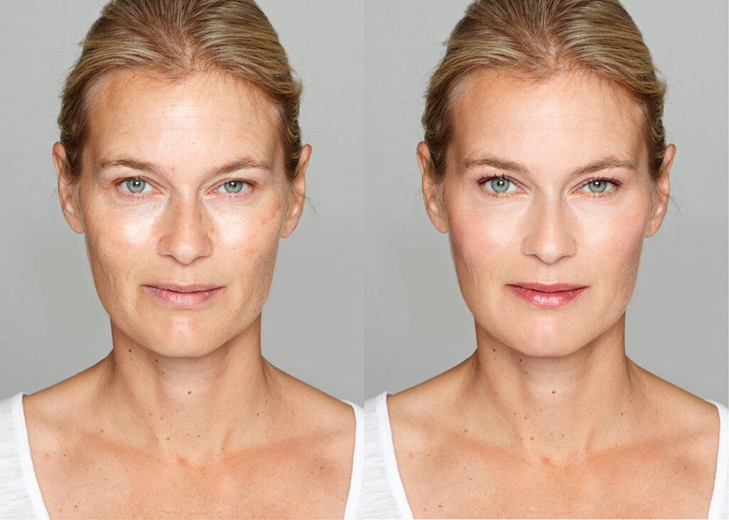 Безинъекционная мезотерапия лица до и после