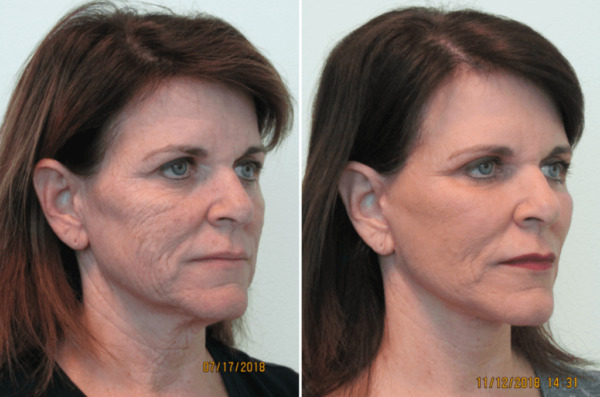 лазерное фракционное омоложение кожи