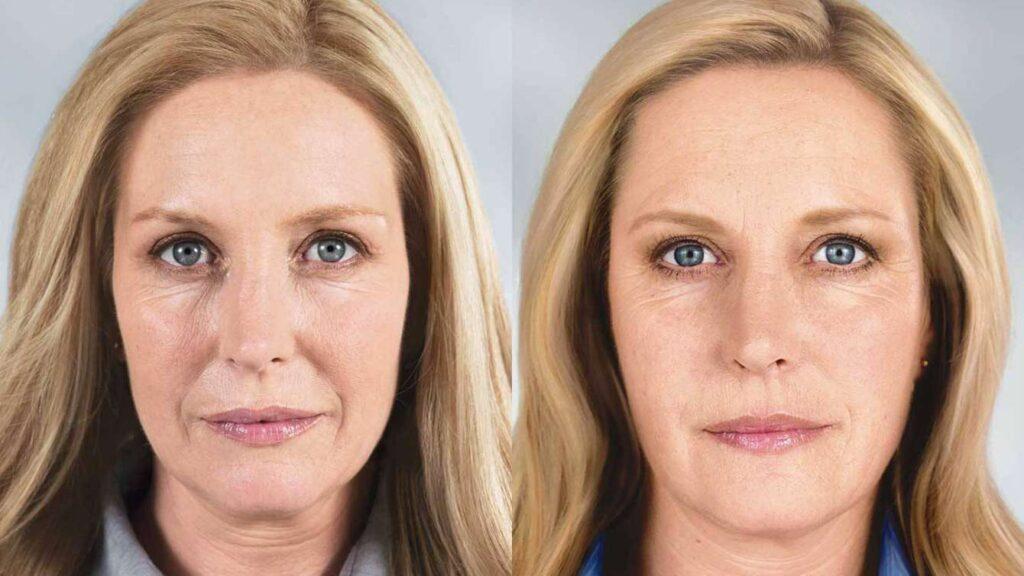 электропорация лица до и после