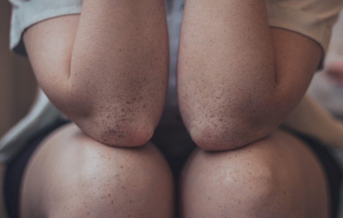 локти и колени