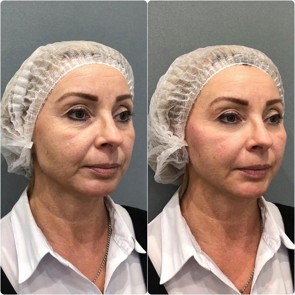 Омоложение лица Full face до и после